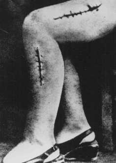 A war crimes investigation photo of the disfigured leg of a survivor from Ravensbrueck, Polish political prisoner Helena Hegier (Rafalska), who was subjected to medical experiments in 1942. This photograph was entered as evidence for the prosecution at the Medical Trial in Nuremberg. The disfiguring scars resulted from incisions made by medical personnel that were purposely infected with bacteria, dirt, and slivers of glass.