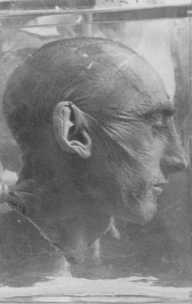 Uma vítima das experiências médicas nazistas. Foto tirada no campo de concentração de Buchenwald, Alemanha, data indeterminada.