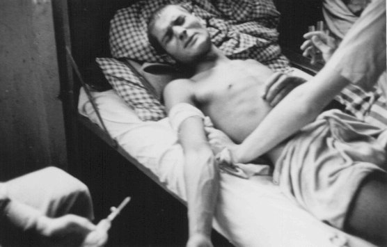 A Romani (Gypsy) victim of Nazi medical experiments to make seawater potable. Dachau concentration camp, Germany, 1944.