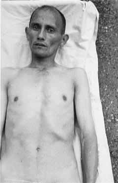 Victime tsigane des expériences médicales nazies pour rendre l'eau de mer potable. Camp de concentration de Dachau, Allemagne, 1944.