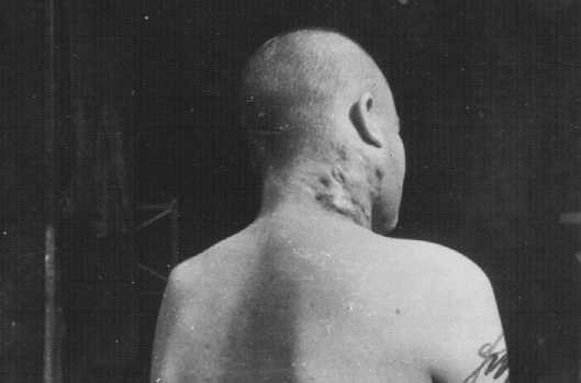 Prisonnier de guerre soviétique, victime d'une expérience médicale sur la tuberculose au camp de concentration de Neuengamme. Allemagne, fin 1944.