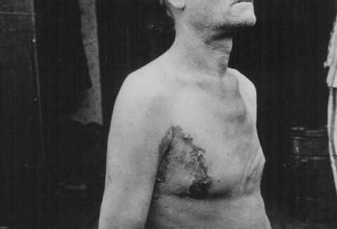 A Soviet prisoner of war, victim of a tuberculosis medical experiment at Neuengamme concentration camp. Germany, late 1944.