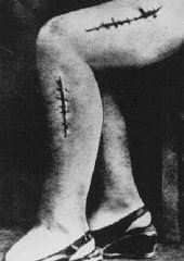 Foto da perna desfigurada de uma sobrevivente de Ravensbrueck...