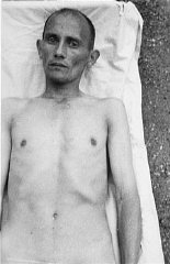 A Romani (Gypsy) victim of Nazi medical experiments...
