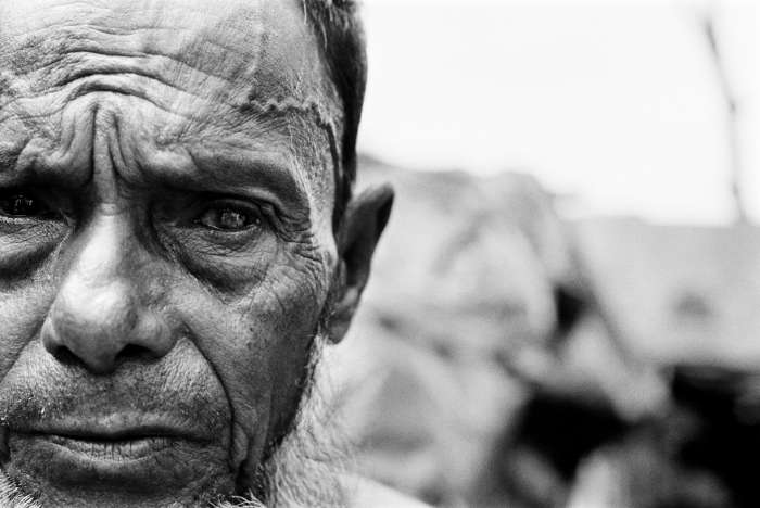 Blind in one eye after being beaten in the head during forced labor, this Rohingya man fled from Burma to Bangladesh in the mid-1990s.