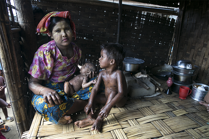 A Rohingya woman nurses her sick baby in an internment camp. The Burmese government has blocked humanitarian assistance from reaching Rohingya, and many said they are without basic medical care.