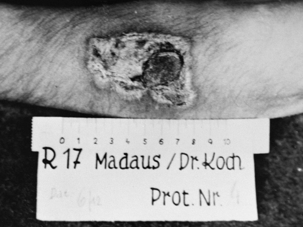 Photo of wounds left by a medical experiment. The victim had been burned with phosphorous so that medicaments could be tested.