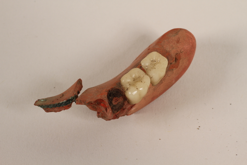 1989.308.16 front Partial lower plate of a denture with two molars recovered from Chelmno killing center